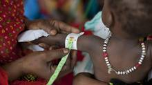 A child has the circumference of her arm measured to check her growth, at a walk-in feeding center in Mao, capital of the Kanem region of Chad. (Ben Curtis/AP)