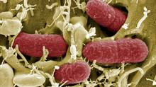 On Tuesday, Health Canada issued its first report on nationwide antibiotic use and drug resistance rates, reporting that superbugs have already cost Canadians $1-billion in medical care (HO/REUTERS)