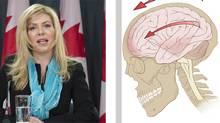 Left: Eve Adams. Right: A diagram of the forces on the brain in a concussion. (Canadian Press/Patrick J. Lynch)