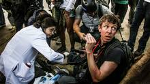 Canadian documentary filmmaker Jason O'Hara is treated in Rio de Janeiro after what he describes as an unprovoked attack by Rio riot police. A video recording shows him beaten and kicked by police. Mr. O'Hara says police broke one camera and stole another. (Bernardo Guerreiro/Midia Ninja Collective)