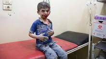 A Syrian boy awaits treatment at a make-shift hospital following air strikes on rebel-held eastern areas of Aleppo on September 24, 2016. (KARAM AL-MASRI/AFP/Getty Images)