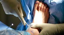 A patient during a right ankle arthroscopy procedure at St. Paul's hospital in Vancouver November 2, 2010. (JOHN LEHMANN/John Lehmann/The Globe and Mail))
