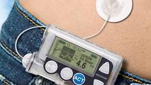 A diabetes monitoring device is shown in a handout photo. (THE CANADIAN PRESS)