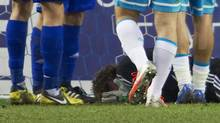 Dynamo Moscow's goalkeeper Anton Shunin suffered an eye injury from firecrackers thrown by fans (STRINGER/RUSSIA/REUTERS)
