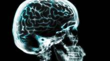 X-ray of a human brain. A discovery could give doctors a new tool to help fight potentially deadly bacterial invasions in people with brain injuries. (Getty Images/Digital Vision/Getty Images/Digital Vision)