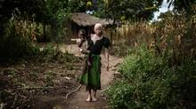(FILES) This file photo taken on April 17, 2015 shows Mainasi Issa, a 23-year-old Malawian albino woman, carries her two-year-old daughter Djiamila Jafali outside her hut in the traditional authority area of Nkole, Machinga district in April, 2015. A Malawi court has banned witchdoctors from operating in the impoverished southern African country following a spate of albino killings linked to witchcraft, according to a court ruling seen on June 2. / AFP PHOTO / Gianluigi GUERCIAGIANLUIGI GUERCIA/AFP/Getty Images (GIANLUIGI GUERCIA/AFP/Getty Images)