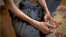 In Myanmar, only one patient in six who requires antiretroviral drugs receives them. (Adam Dean/Adam Dean for The Globe and Mail)