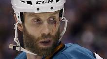 San Jose Sharks center Joe Thornton looks back as he plays against the Vancouver Canucks after being cut in the face during Game 2 of their NHL Western Conference Final hockey playoff in Vancouver, British Columbia May 18, 2011. REUTERS/Ben Nelms (Ben Nelms/Reuters)
