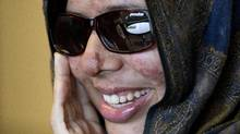 Rumana Monzur, a UBC student who was attacked and blinded by her husband in Bangladesh seen here October 11, 2011 during an interview with the Globe and Mail in Vancouver. (John Lehmann/The Globe and Mail/John Lehmann/The Globe and Mail)