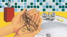 Hair loss isn't just for middle aged med (Illustration by Rachelle Maynard)