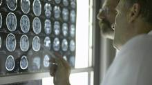 Placebos include MRI scans and X-ray tests used to assure patients nothing is wrong. (Jochen Sand/Thinkstock)