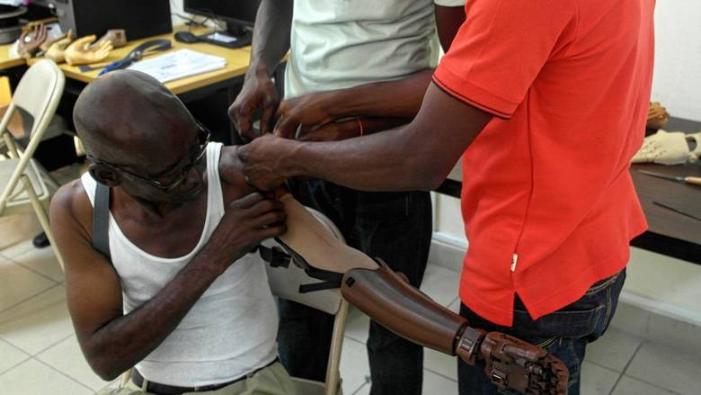 Technicians fit a Haitian amputee with a customized, locally printed Victoria Hand.