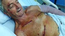 Les Lehmann, recovers in hospital in the Dominican Republic in a recent photo. (THE CANADIAN PRESS)