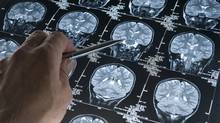 Inflammation in the brainis linked to memory loss and cognitive disorders, including Alzheimer's disease. (Photos.com)
