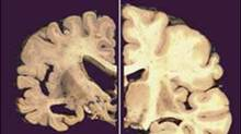 This undated file combo image provided by Merck & Co., shows a cross section of a normal brain, right, and one of a brain damaged by advanced Alzheimer's disease. Researchers say anxiety may accelerate the decline into Alzheimer's disease in older patients with mild memory problems. (AP Photo/Merck & Co.)