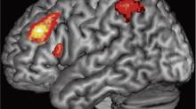 Areas of the brain are shown in colour where it is active as someone switches tasks. A new study shows brains of bilingual speakers don't have to work as hard as people who speak only one language. (Brian T. Gold/University of Kentucky)
