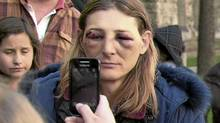 Angela Turvey was arrested Friday after clashing with police oputside 361 University Avenue courthouse where Occupy Toronto had tents erected. She was videotaping the police. She claims she was injured during the altercation with police. (Facebook/Facebook)