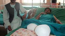 Mohammed, a grape picker at a farm in Kandahar, had both his legs amputated after a NATO air strike. His brother, Noorullhaq, visited him at the hospital.