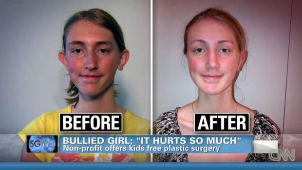 stop teen cosmetic surgery Should teenagers be allowed to have cosmetic surgery there are differing opinions and much controversy around the topic one group says it is best to let teens have cosmetic surgery if they wish.