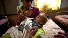 A mother feeds her malnourished child at a Nutrition Rehabilitation Center (NCR) in Shivpuri, India. (zackary canepari/zackary canepari/THE GLOBE AND M)