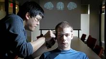 Researcher Danny Nguyen measures the head of research assistant Carl Tremblay-Cadorette, who has Asperger's syndrome, at a Montreal hospital on Wednesday. (Christinne Muschi for The Globe and Mail)