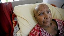 Amar Patel, who is suffering from breast cancer, lies in bed in her apartment in Toronto, Ontario, Canada. Patel is in a dispute with The Bank of Nova Scotia over some holdings she wishes to redeem from the bank. (Deborah Baic/The Globe and Mail)