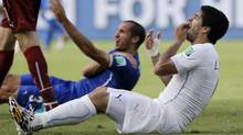 Uruguay's Luis Suarez holds his teeth after running into Italy's Giorgio Chiellini's shoulder during the group D World Cup soccer match between Italy and Uruguay at the Arena das Dunas in Natal, Brazil, Tuesday, June 24, 2014. (Ricardo Mazalan/AP)