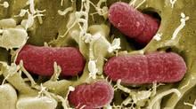 EHEC bacteria (enterohaemorrhagic Escherichia coli) killed several people in Europe last spring. (HO/REUTERS)