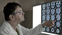 Paolo Zamboni inspects the brain scan of an MS patient in his office at the University Hospital of Ferrara, Italy, on Nov. 19, 2010. (Alessandro Vincenzi/Alessandro Vincenzi for The Globe and Mail)